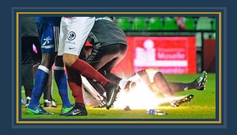 إصابة حارس ليون فى مباراة ميتز