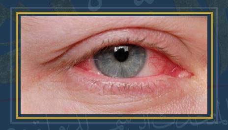 التهاب العين - أرشيفية